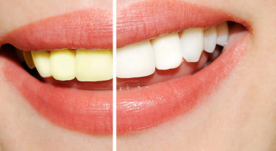 Does Coconut Oil and Turmeric Teeth Whitening Really Work? Five…