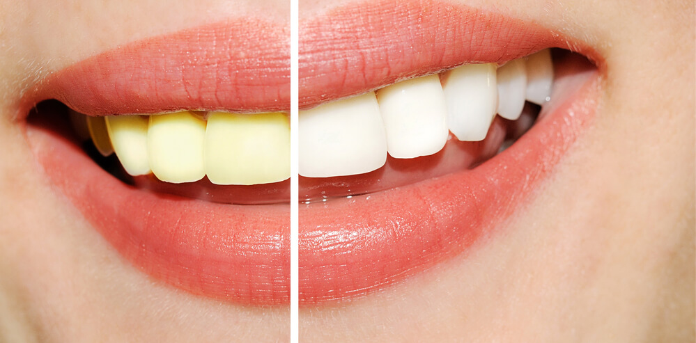 Does Coconut Oil and Turmeric Teeth Whitening Really Work? Five Things You Should Know