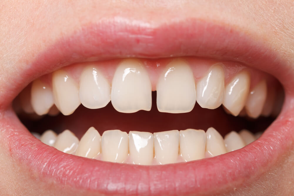 Are Teeth Gap Bands Safe?